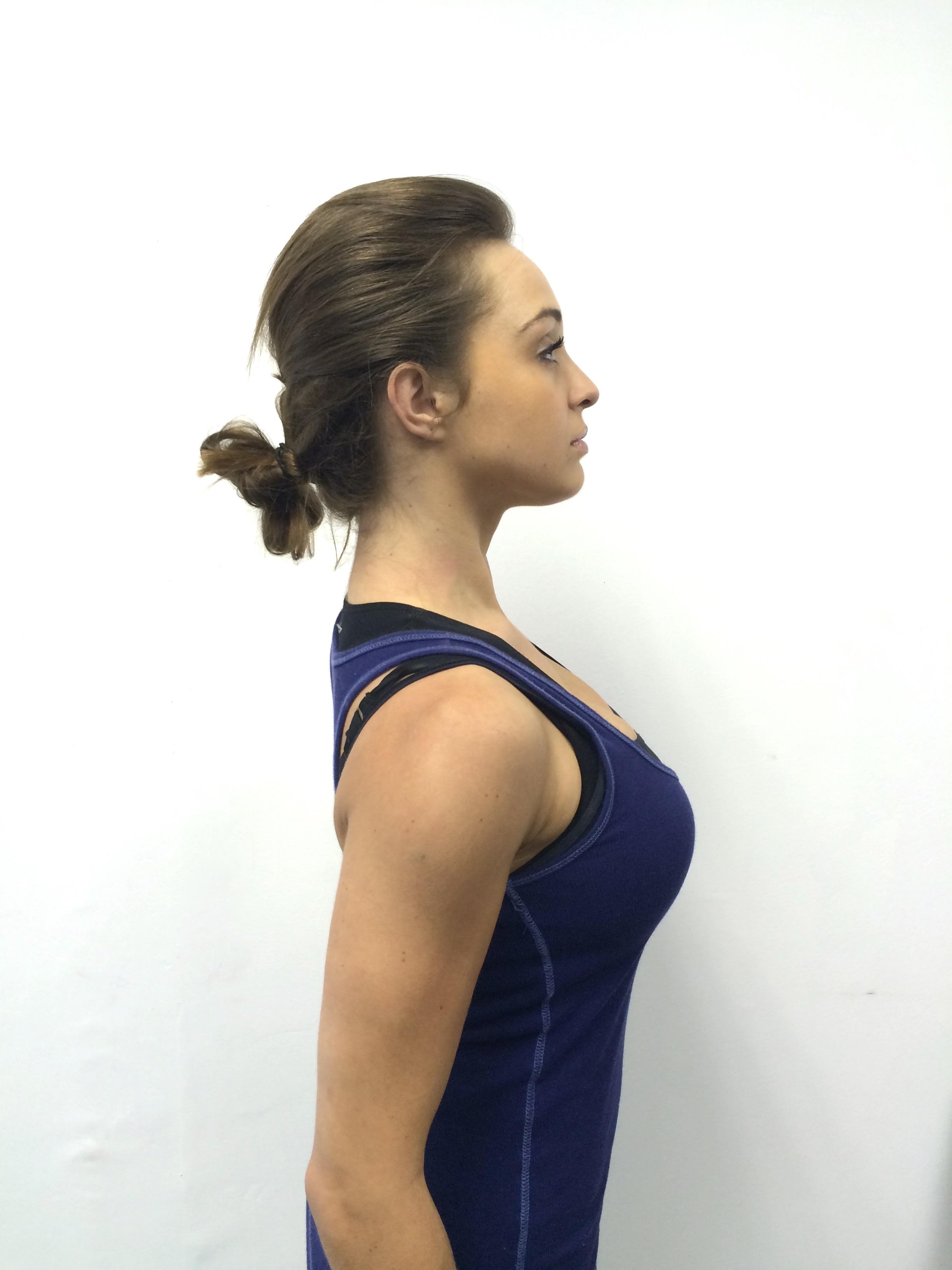 posture-correction-Umhlanga-Johannesburg